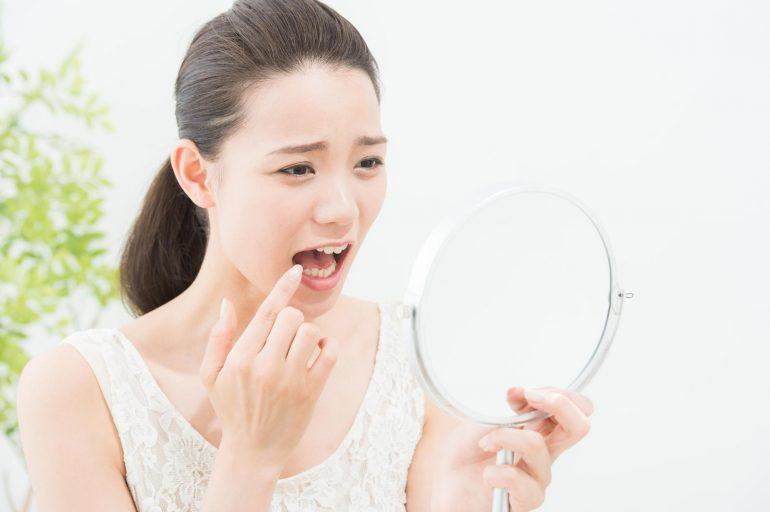 歯肉炎|郡山ファースト歯科矯正歯科