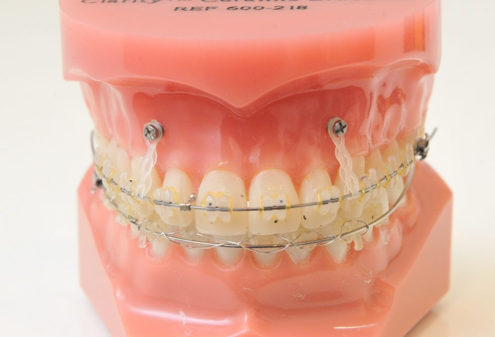 インプラント矯正|郡山ファースト歯科矯正歯科