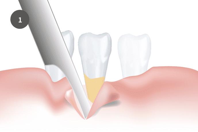 結合組織移植術/CTGについて|郡山ファースト歯科矯正歯科