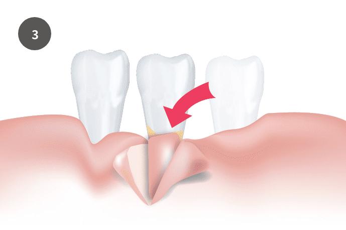 結合組織移植術/CTG|郡山ファースト歯科矯正歯科