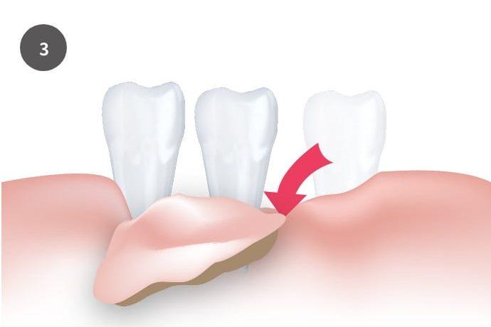 遊離歯肉移植術/FGG|郡山ファースト歯科矯正歯科
