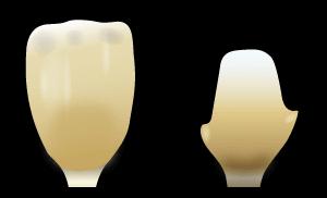 ファイバーコア|郡山ファースト歯科矯正歯科の審美歯科治療