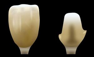 レジンコア|郡山ファースト歯科矯正歯科の審美歯科治療