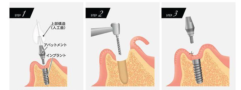 インプラント治療のながれ|郡山ファースト歯科矯正歯科